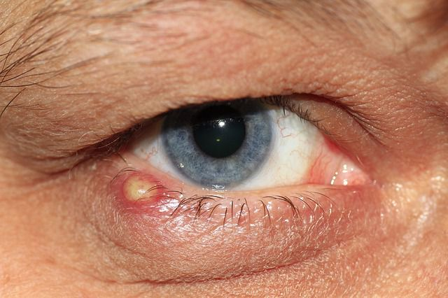eye-inflammation